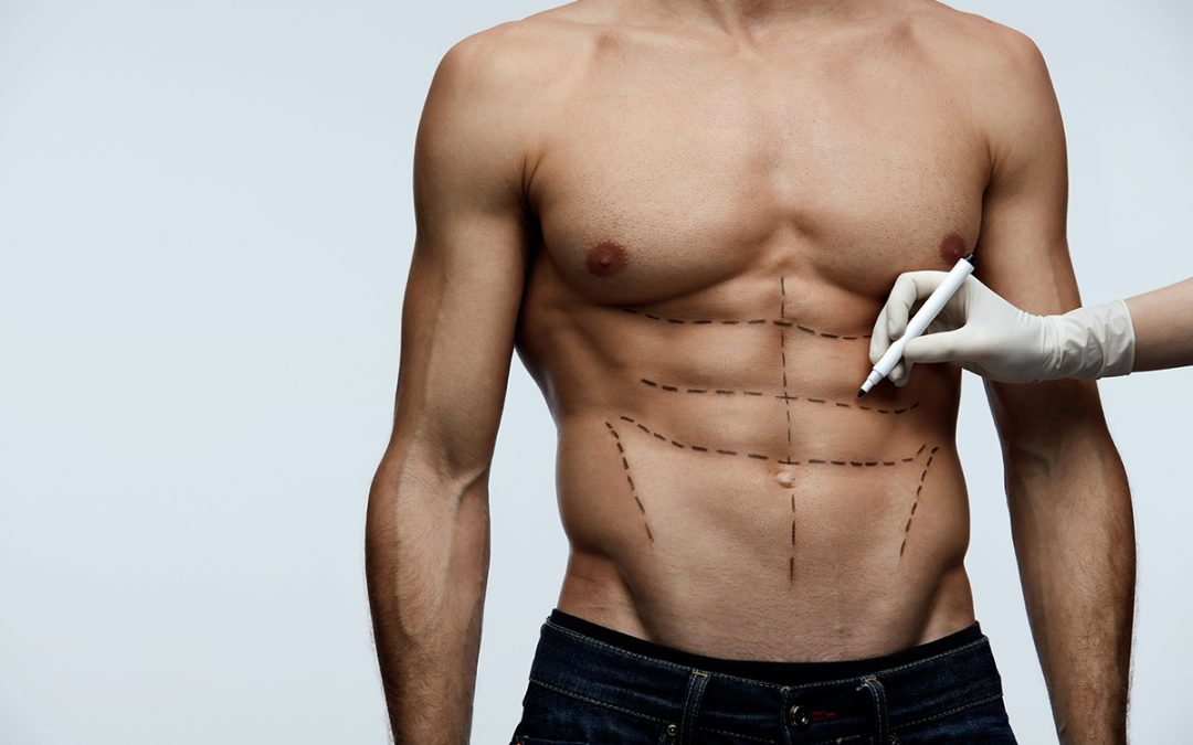 Comment obtenir de beaux abdominaux ? Découvrez l'abdominal etching