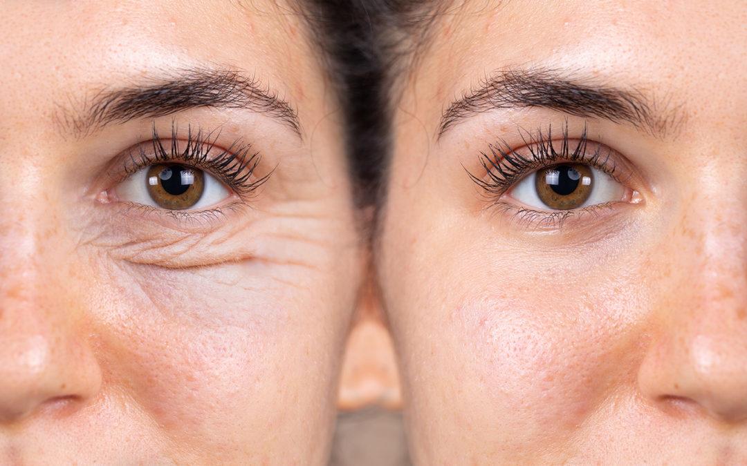 Blépharoplastie : un nouveau regard grâce à la chirurgie des paupières